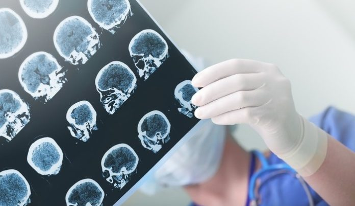 FDA Approves Lilly's Tauvid Imaging Agent to Help Diagnose Alzheimer's Disease