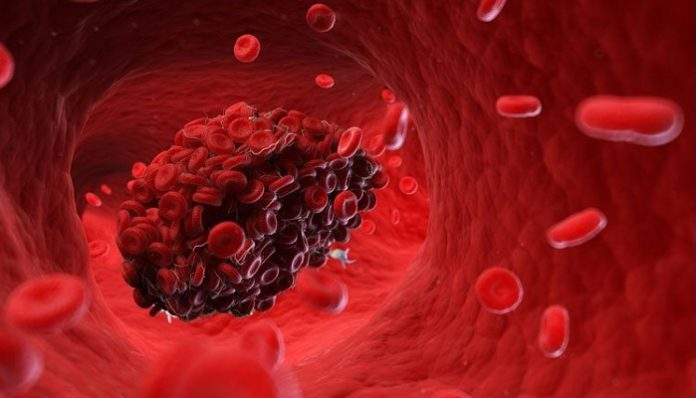 U.S. FDA approves rivaroxaban to help prevent blood clots in acutely ill medical patients